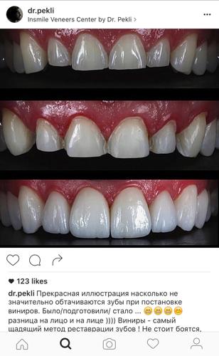 подготовка зубов под виниры